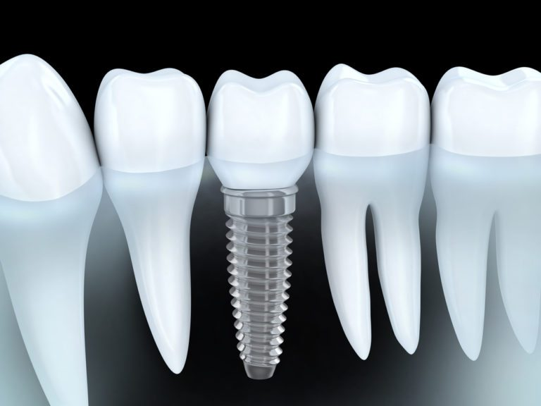 diagram of dental implants